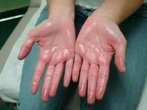 Для лечения сильной потливости рук нужно выявить причину