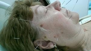 Особенности лечения невралгии лицевого нерва