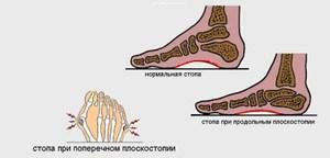 Методы лечения плоскостопия