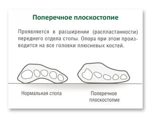 Лечебные процедуры при плоскостопии
