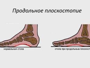 Способы лечения поперечного плоскостопия, профилактика и лечение ...