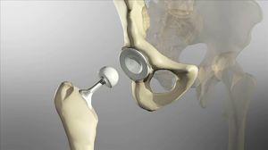 Лечение головки тазобедренного сустава хирургическим путем