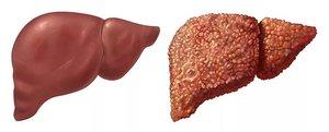 Заболевание печени у человека