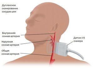 Схема сосуды шеи и головы