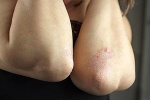 Почему шелушится кожа на локтях