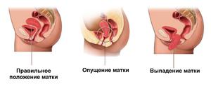 Причины выпадения матки у женщин пожилого возраста