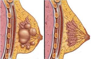 Причины образования кисты в груди у женщин