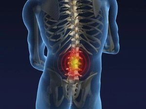 Диагностика развития болезни пояснично-крестцового отдела