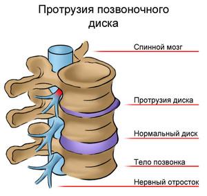Симптомы протрузии дисков