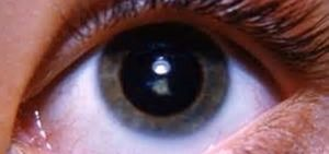 Как лечат катаракту народными средствами