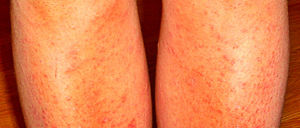 Почему на ногах появляются красные маленькие прыщики маленькие прыщики